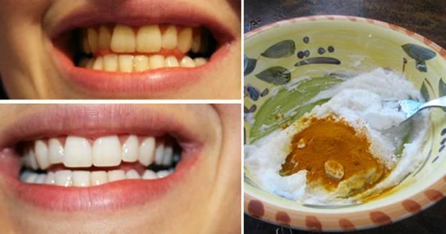 Creative Ideas - How To Whiten Your Teeth Using Turmeric