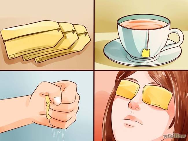Effective Home Remedies to Soothe Sore Eyes