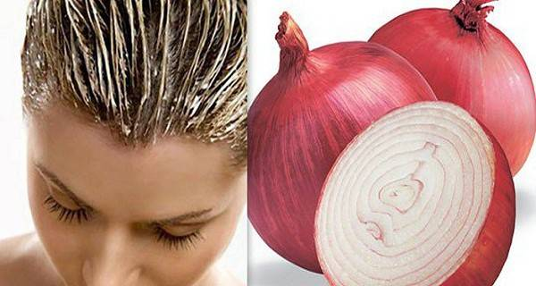 Doğal Ana Telafiler olarak Soğan Yaratıcı Kullanımı -> saçınızı daha hızlı 2 kez büyümesine yardımcı