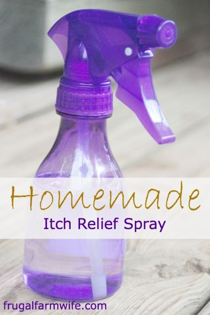 30+ Brilliant Mom Hacks That Will Make Your Life Easier --> Make some homemade itch relief spray.