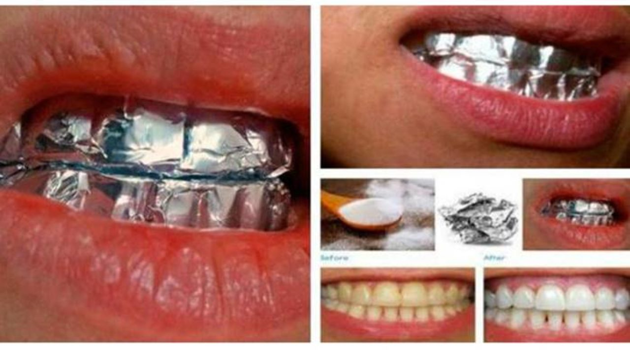 This Is What Happens When You Wrap Your Teeth In Aluminum Foil For 1 Hour I Creative Ideas