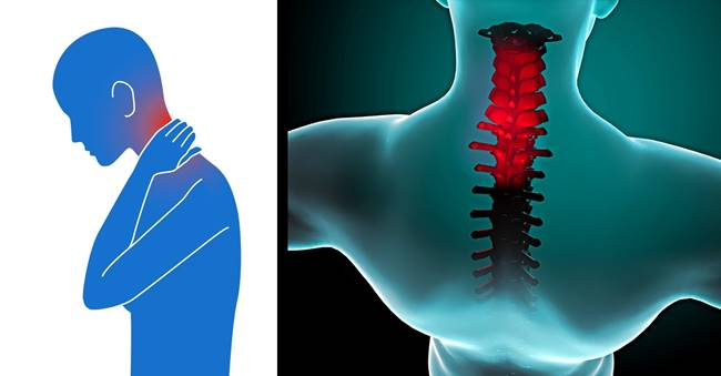 Health Tips - How to Relieve Stiff Neck Naturally in 90 Seconds